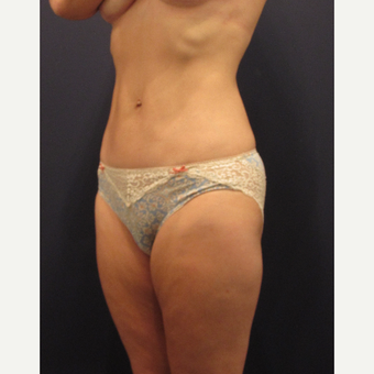 45-54 year old woman treated with Liposuction after 3691162