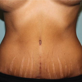 Full Tummy Tuck after 3455041