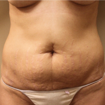 Full Tummy Tuck before 3455041