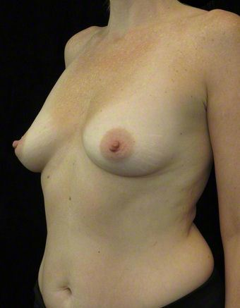 35-44 year old woman treated with Breast Augmentation 3103633