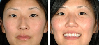 Asian Eyelid Surgery before 1208227