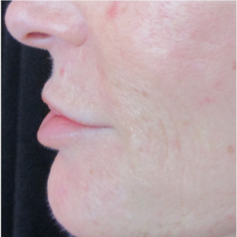 54 year old woman pre and post 1 syringe of Juvederm before 3056490