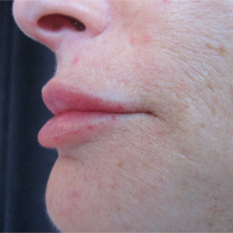 54 year old woman pre and post 1 syringe of Juvederm after 3056490