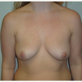 25-34 year old woman treated with Breast Augmentation before 3200622