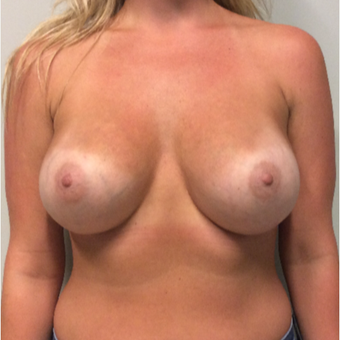 25-34 year old woman treated with Breast Augmentation after 3200622