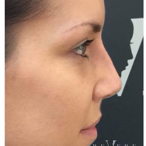 Non Surgical Nose Job at Revere Clinics after 3107161