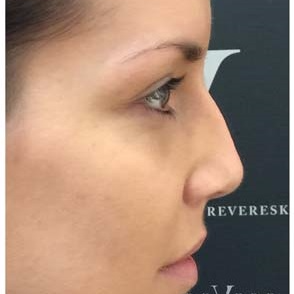 Non Surgical Nose Job at Revere Clinics before 3107161