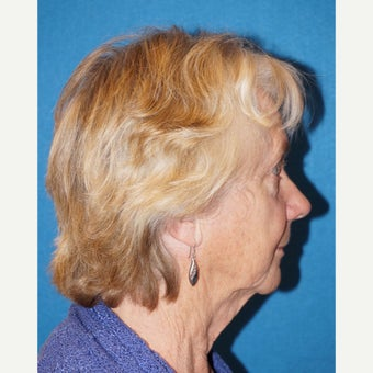 72 year old woman treated with Facelift