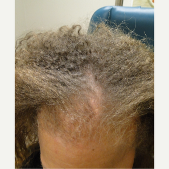 35-44 year old female patient treated with PRP for Hair Loss before 3195553