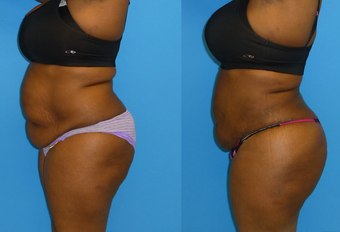 38 Year Old Female Underwent Brazilian Butt Lift - BBL (Fat Transfer to Buttocks) after 1142969
