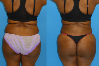 38 Year Old Female Underwent Brazilian Butt Lift - BBL (Fat Transfer to Buttocks) before 1142969