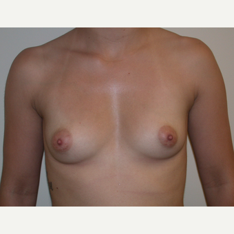 5 Years Post Breast Augmentation before 3840085