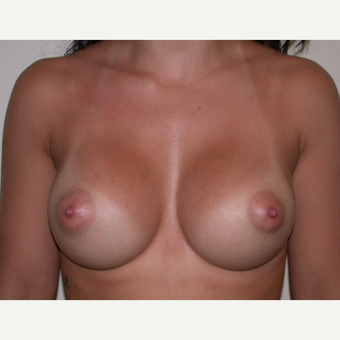5 Years Post Breast Augmentation after 3840085