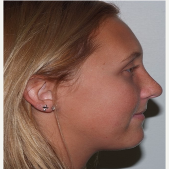 Rhinoplasty after 3324374