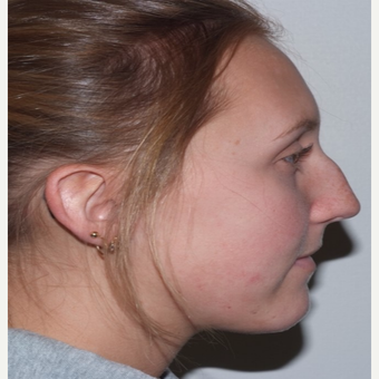 Rhinoplasty before 3324374