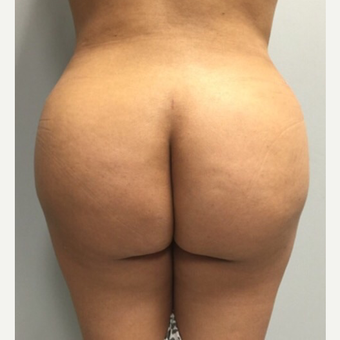 18-24 year old woman treated with Brazilian Butt Lift after 3022860