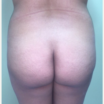 18-24 year old woman treated with Brazilian Butt Lift before 3022860