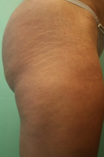 Stretch Marks Treatment - Carboxy Therapy  after 1350458