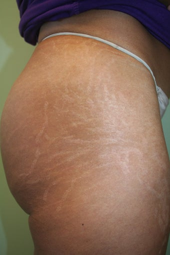 Stretch Marks Treatment - Carboxy Therapy  before 1350458