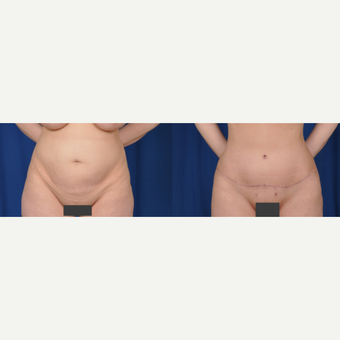 35-44 year old woman treated with Tummy Tuck before 3522535