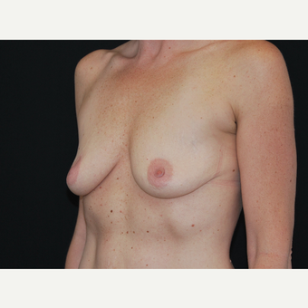 35-44 year old woman treated with Breast Implants before 3651246