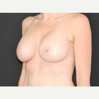 35-44 year old woman treated with Breast Implants after 3651246