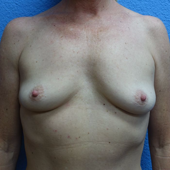 45-54 year old woman treated with Breast Augmentation before 3400518