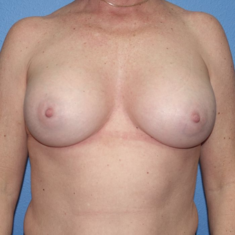 45-54 year old woman treated with Breast Augmentation after 3400518