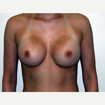 25-34 year old woman treated with Breast Augmentation after 3378518