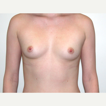 25-34 year old woman treated with Breast Augmentation before 3378518