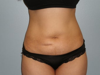 32 Y.O Woman Who Had a Full Abdominoplasty. before 1454968