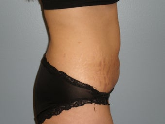 32 Y.O Woman Who Had a Full Abdominoplasty. 1454968