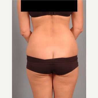 45-54 year old woman treated with Vaser Liposuction before 2479863
