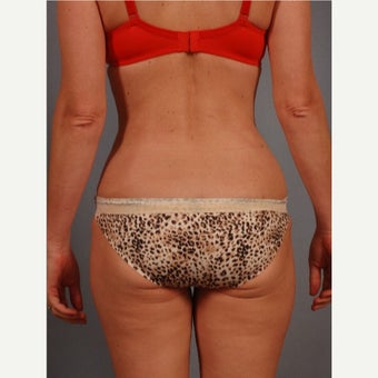 45-54 year old woman treated with Vaser Liposuction after 2479863