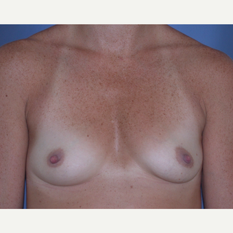 25-34 year old woman treated with Breast Augmentation before 3287458