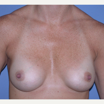 25-34 year old woman treated with Breast Augmentation after 3287458