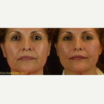 Lifting of Cheeks and Lower Third of Face with NovaThreads before 2629656