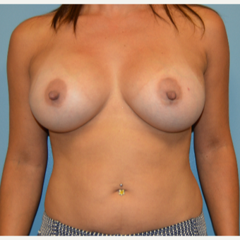 35-44 year old woman treated with Breast Augmentation after 3261475