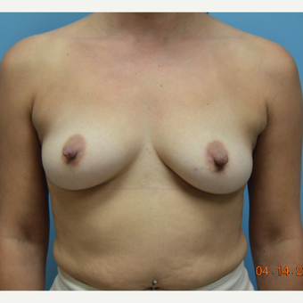 35-44 year old woman treated with Breast Augmentation before 3261475