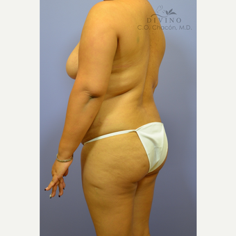 25-34 year old woman treated with Liposuction before 3391738