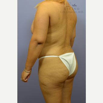 25-34 year old woman treated with Liposuction after 3391738