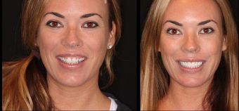 Before & After Smile Make-Over-Upper 8 Veneers before 664427