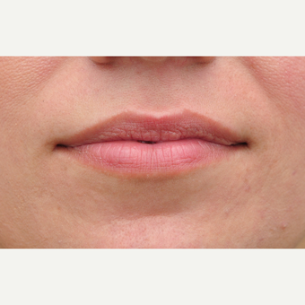 18-24 year old woman treated with Lip Augmentation before 3135171