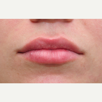 18-24 year old woman treated with Lip Augmentation after 3135171