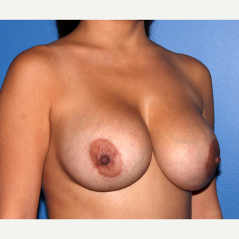 45-54 year old woman treated with Breast Implant Revision after 3218933