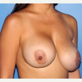 45-54 year old woman treated with Breast Implant Revision before 3218933