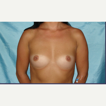 25-34 year old woman treated with Breast Implants before 3831601
