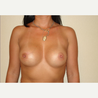 25-34 year old woman treated with Breast Implants after 3831601