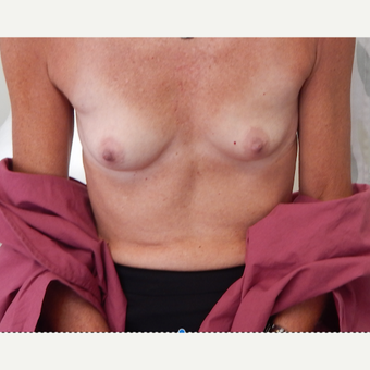 45-54 year old woman treated with Breast Augmentation before 3813802