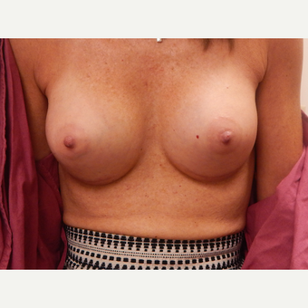 45-54 year old woman treated with Breast Augmentation after 3813802